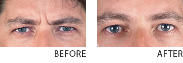 botox before after 40 year old male half